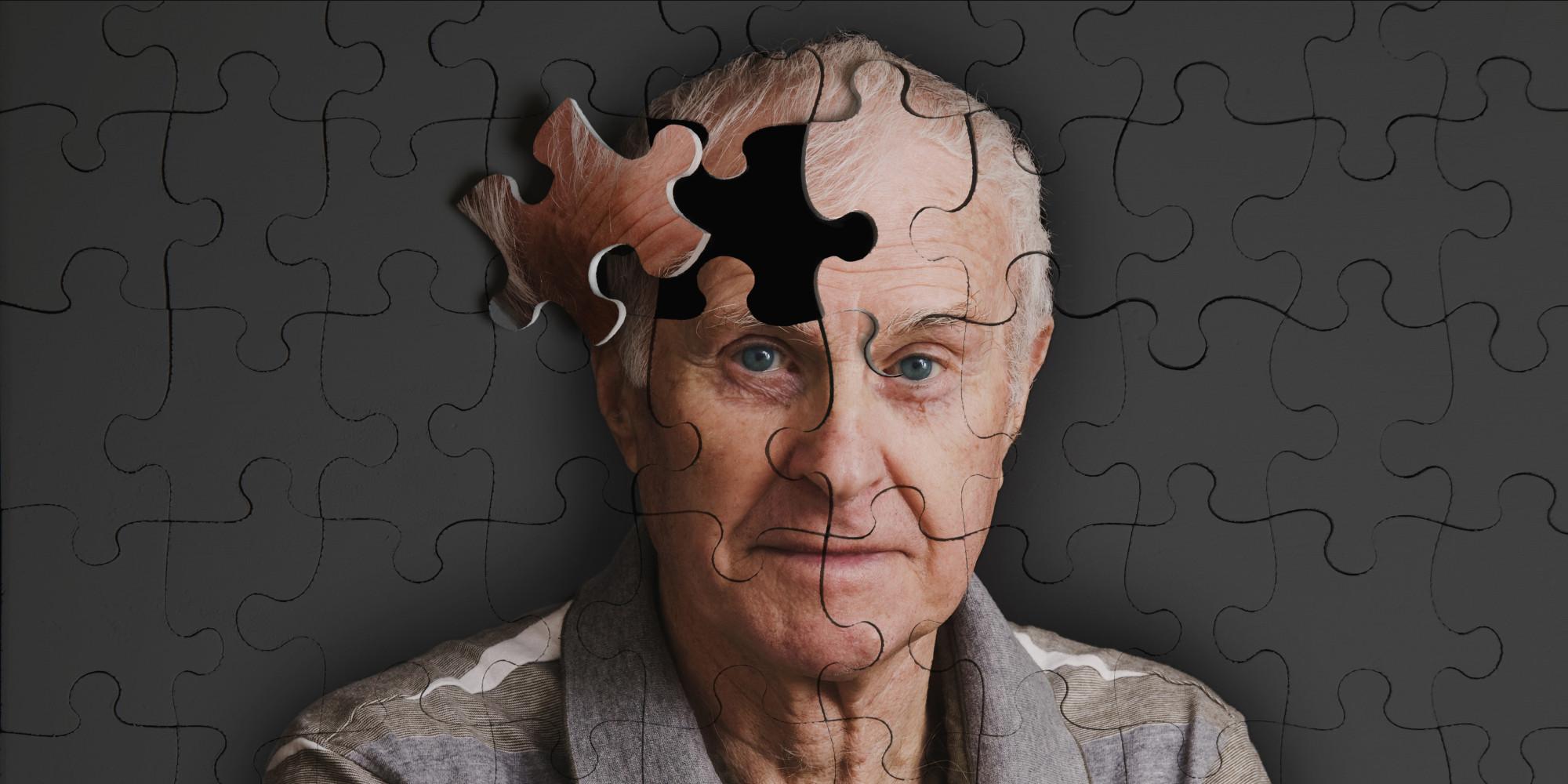 Alzheimer-03082015
