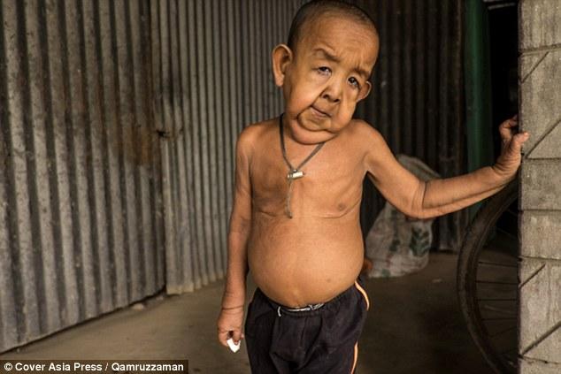 Bayezid Hossain este un baietel de patru ani din Bangladesh, care arata ca un batran de 80 de ani. El sufera de progeria, o afectiune foarte rara.