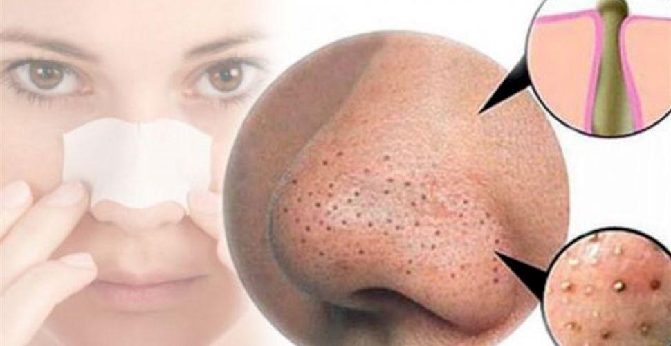 Remedii naturiste pentru punctele negre | hpv.iubescstudentia.ro
