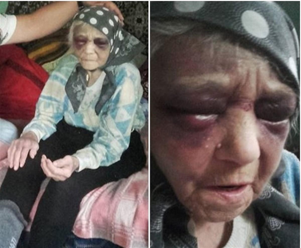 O femeie de 90 de ani din județul Brăila a fost bătută cu bestialitate. Cazul a intrat în atenția polțiștilor după ce imaginile cu ea au ajuns pe Facebook.