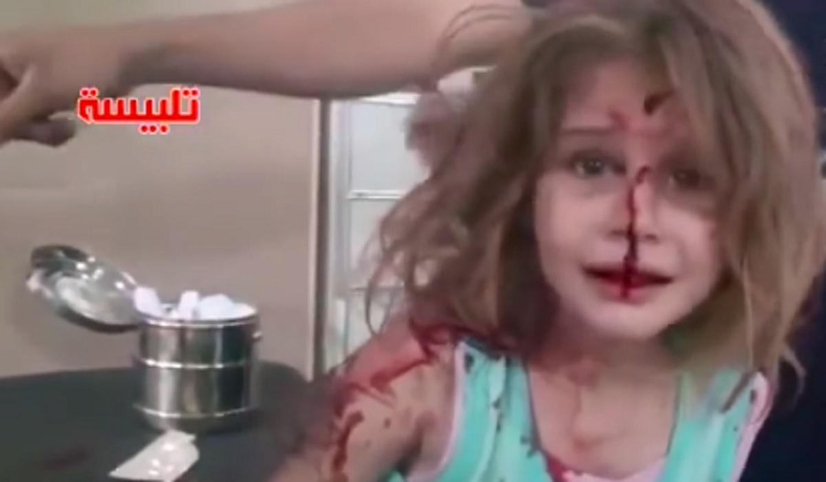 Imaginile terorii! O fetiță rănită în bombardamentele din Siria își caută tatăl