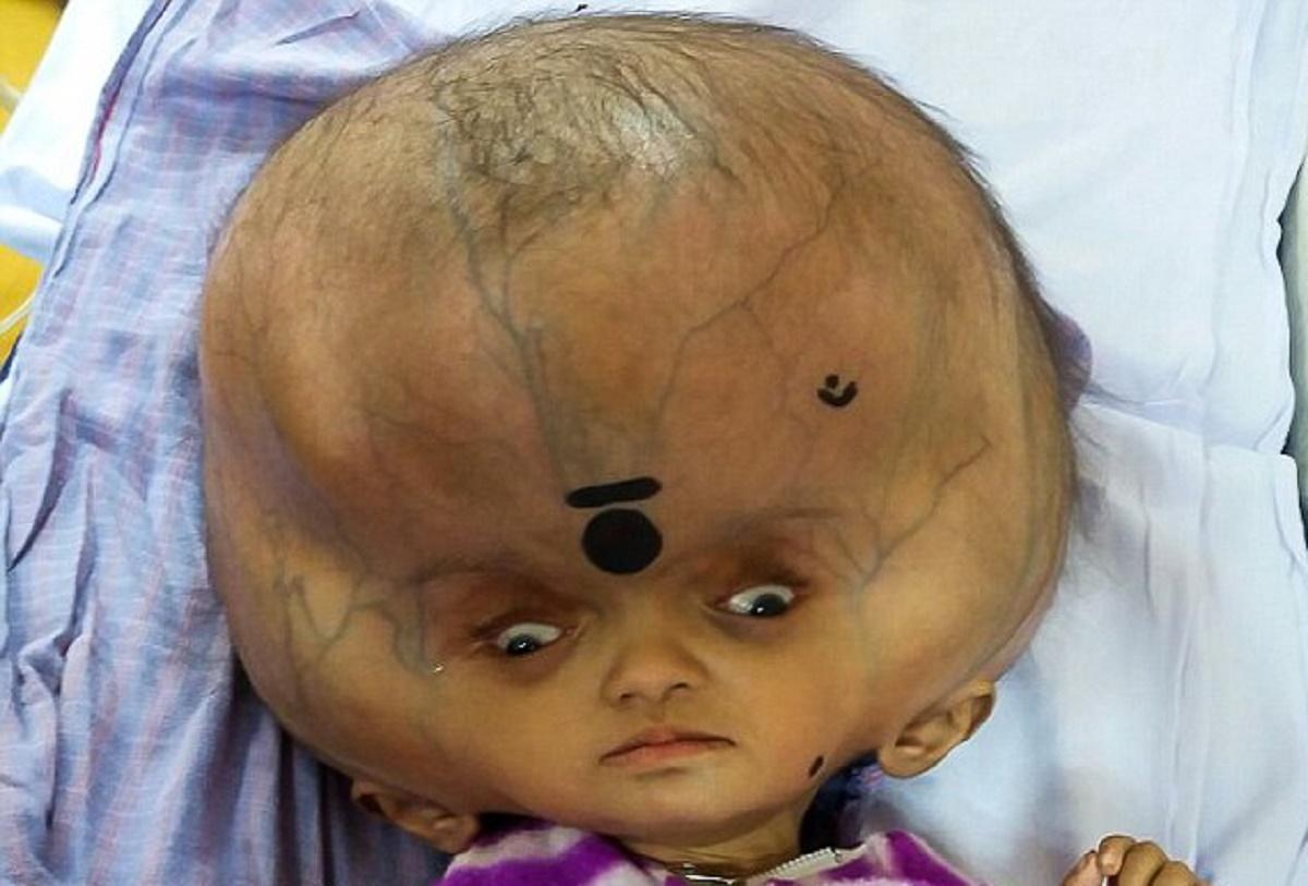 Bebelușul cu cel mare cap din lume a fost tratat pentru hidrocefalie. Medicii i-au redus circumferința craniului de la 96 cm, la 70 de cm