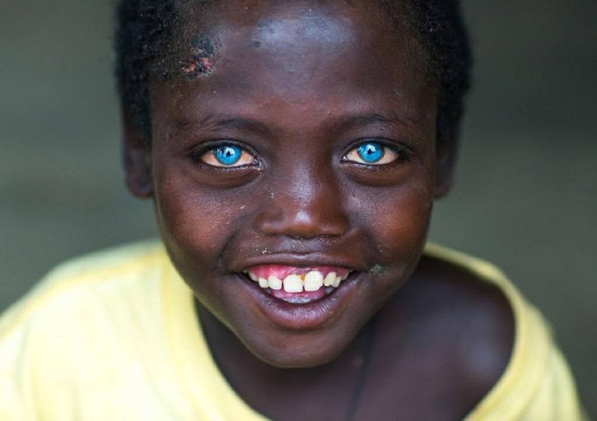 Acest băiat s-a născut cu cei mai frumoși ochi albaștri din lume. Abushe are 8 ani și s-a născut în Etiopia.