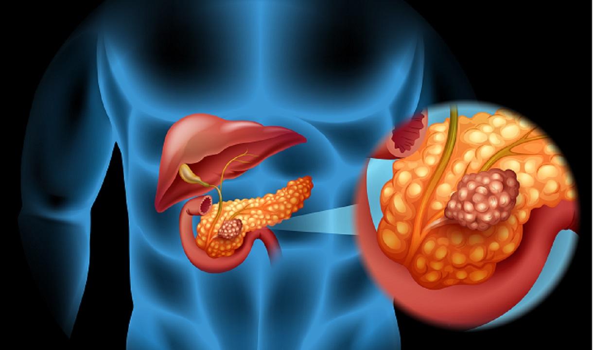Boala de care suferea Ionela Prodan - Cancer de prancres. Simptomele pot fi descoperite la timp