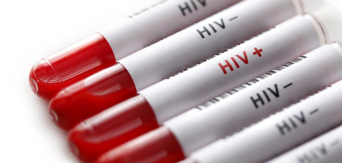 Toți pacienții acestui fals medic trebuie să-și facă testul pentru hepatitele B, C și pentru HIV