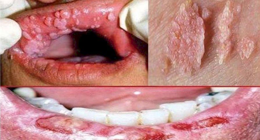 Virusul hpv si cos in zona genitala