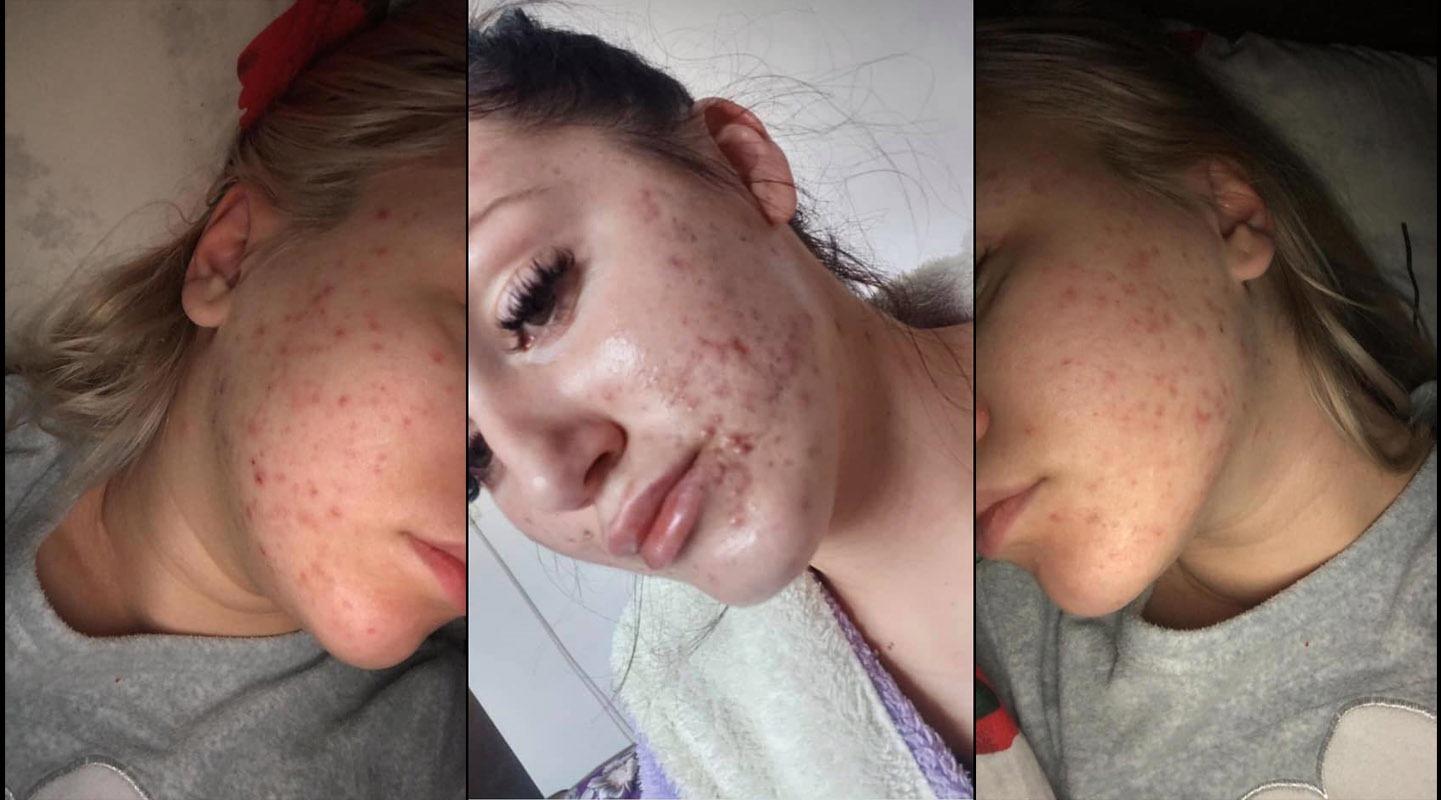 Un fals dermatolog a distrus tenul a zeci de femei cu creme promovate pe rețelele de socializare
