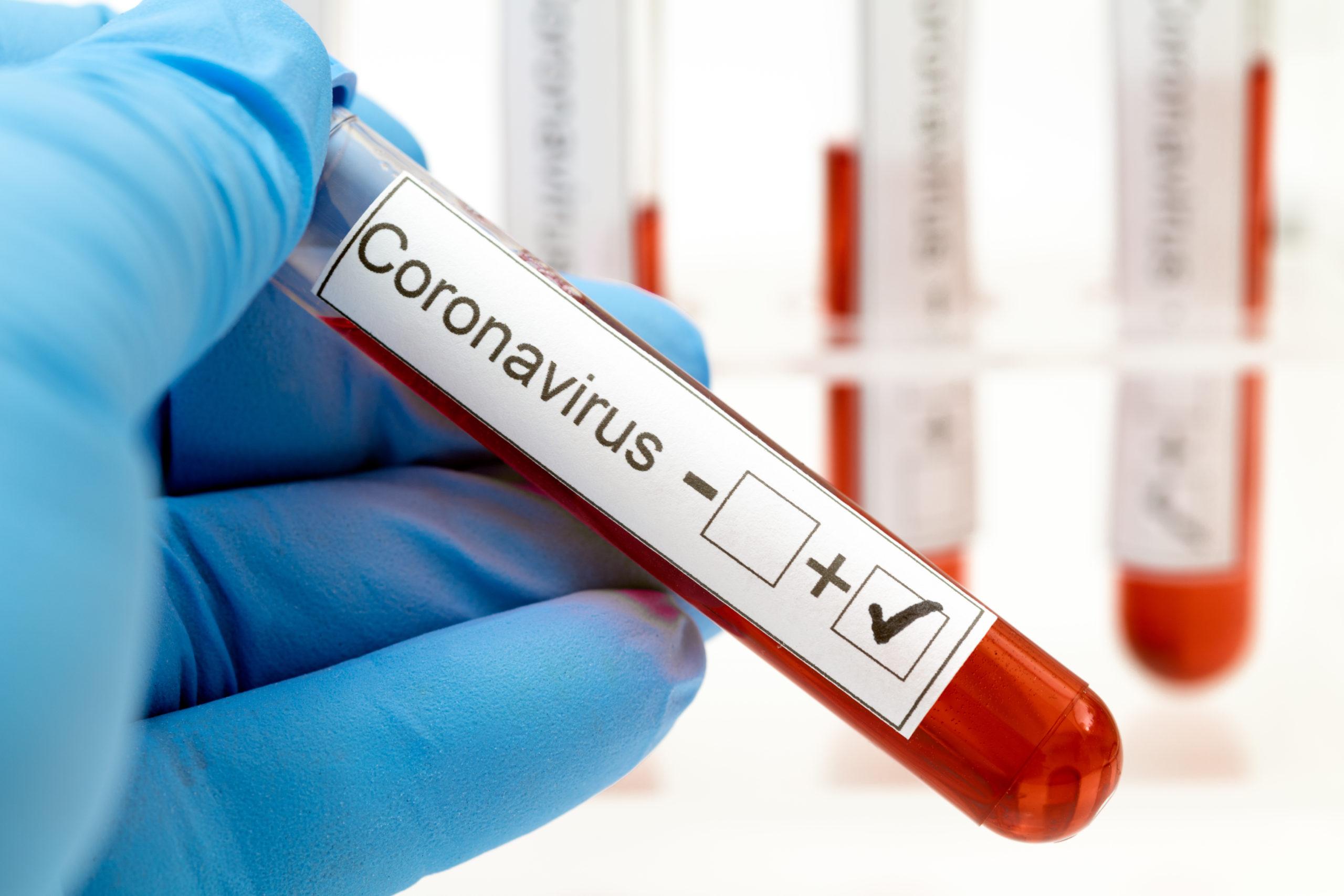 Bilanț coronavirus 17 iulie. A fost înregistrat un nou record de infectări