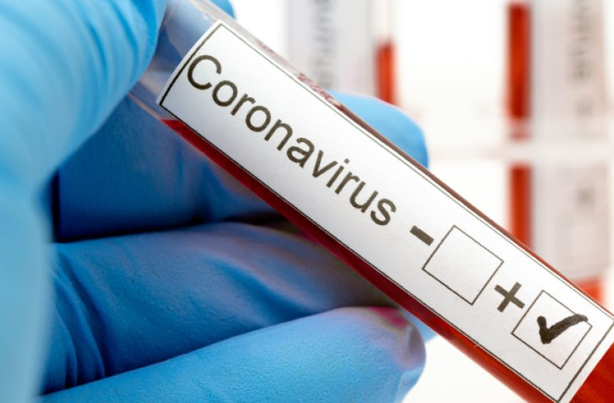 A început testarea care va arăta gradul de imunizare a populaţiei la infecţia cu SARS-CoV-2