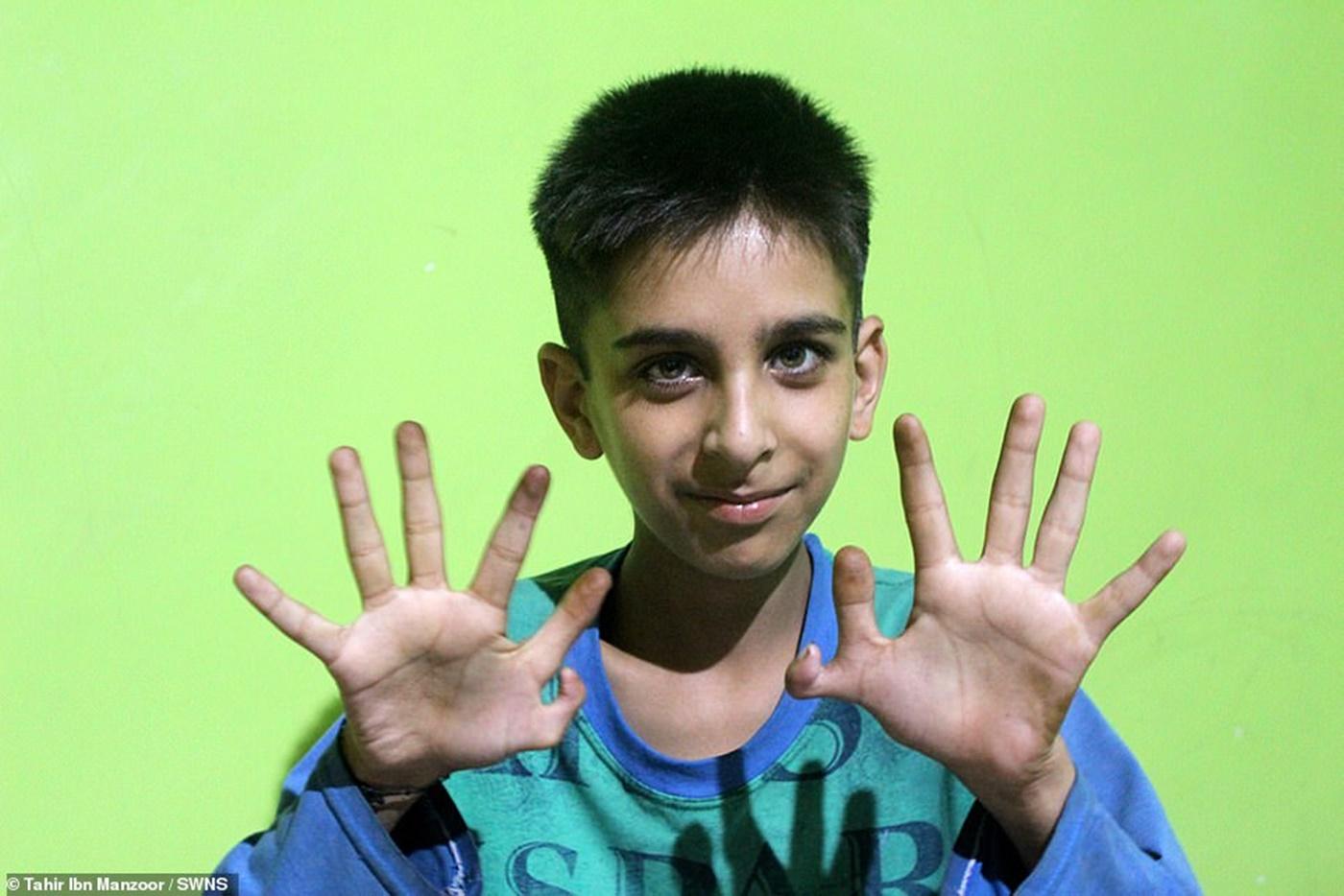 Povestea băiatului care s-a născut cu 12 degete la mâini! Părinții nu vor să îl opereze