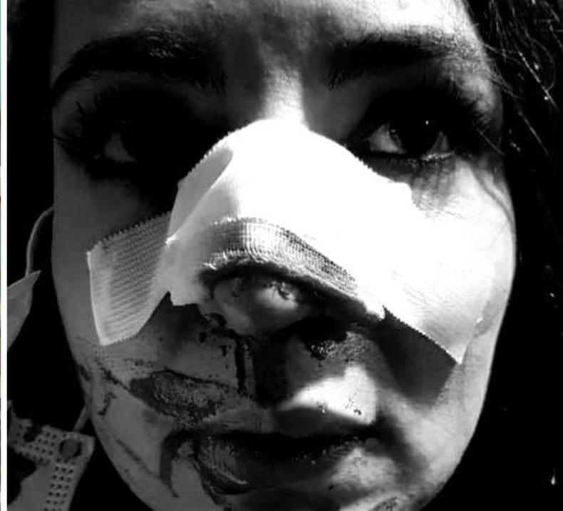 Vedeta Visuri la Cheie de la Pro TV, a fost bătută măr. Și-a luat un pumn în față și a ajuns în operație
